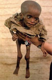 desnutrición en áfrica