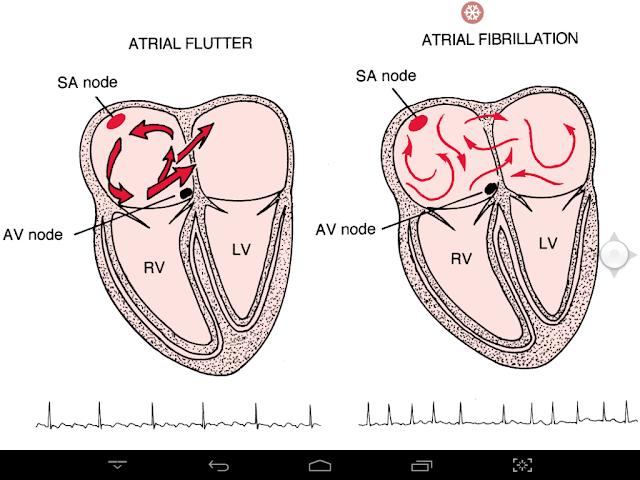 fibrillation machine