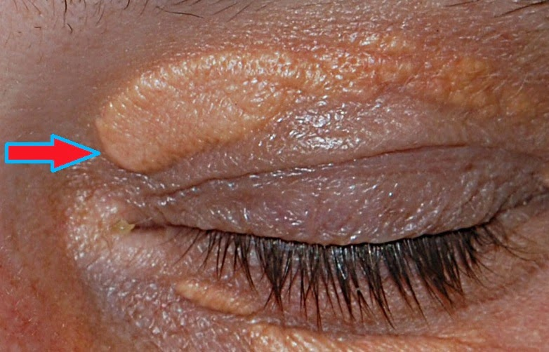 Xanthelasma treatment therapy