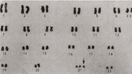 Kromosom manusia dengan sindrom Down
