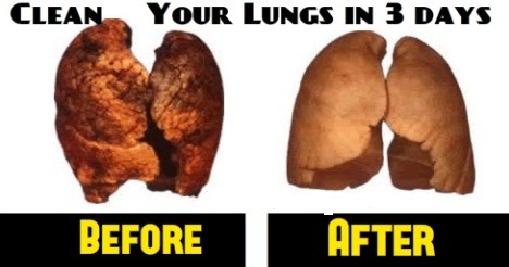 how to help your lungs recover from smoking