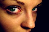 göz-altı-morlukları-nasıl-geçer