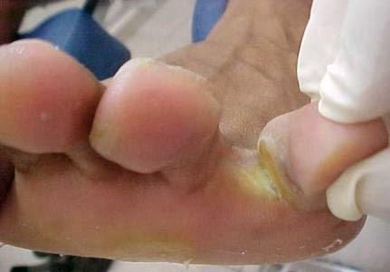 Ajuda no momento do tratamento de um fungo de pregos