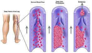 Types of arterial thrombus thrombi and venous thrombus for Mural thrombi
