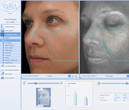 visia-analisis-facial