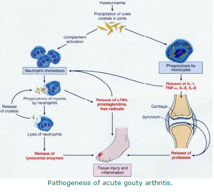 diet restrictions for gouty arthritis joint pain between gout attacks