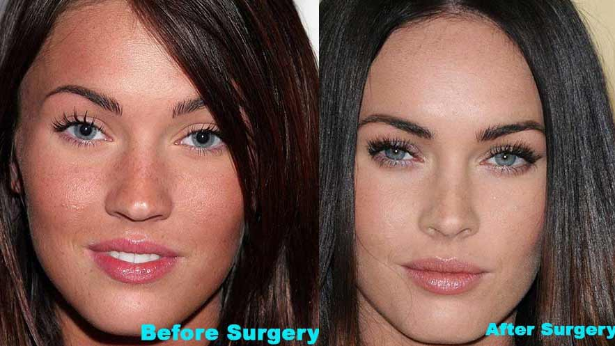 Megan Fox Plastic Surgery Before After