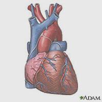 problemas del corazon por diabetes