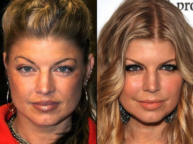 Fergie Antes y Despues