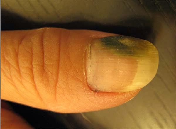 美甲店做指甲,感染灰指甲