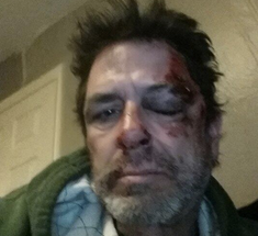 Evel Dick Hit By Car, Tweets Bloodied Pic