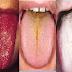 لون لسانك يكشف لك عن أمراضك
