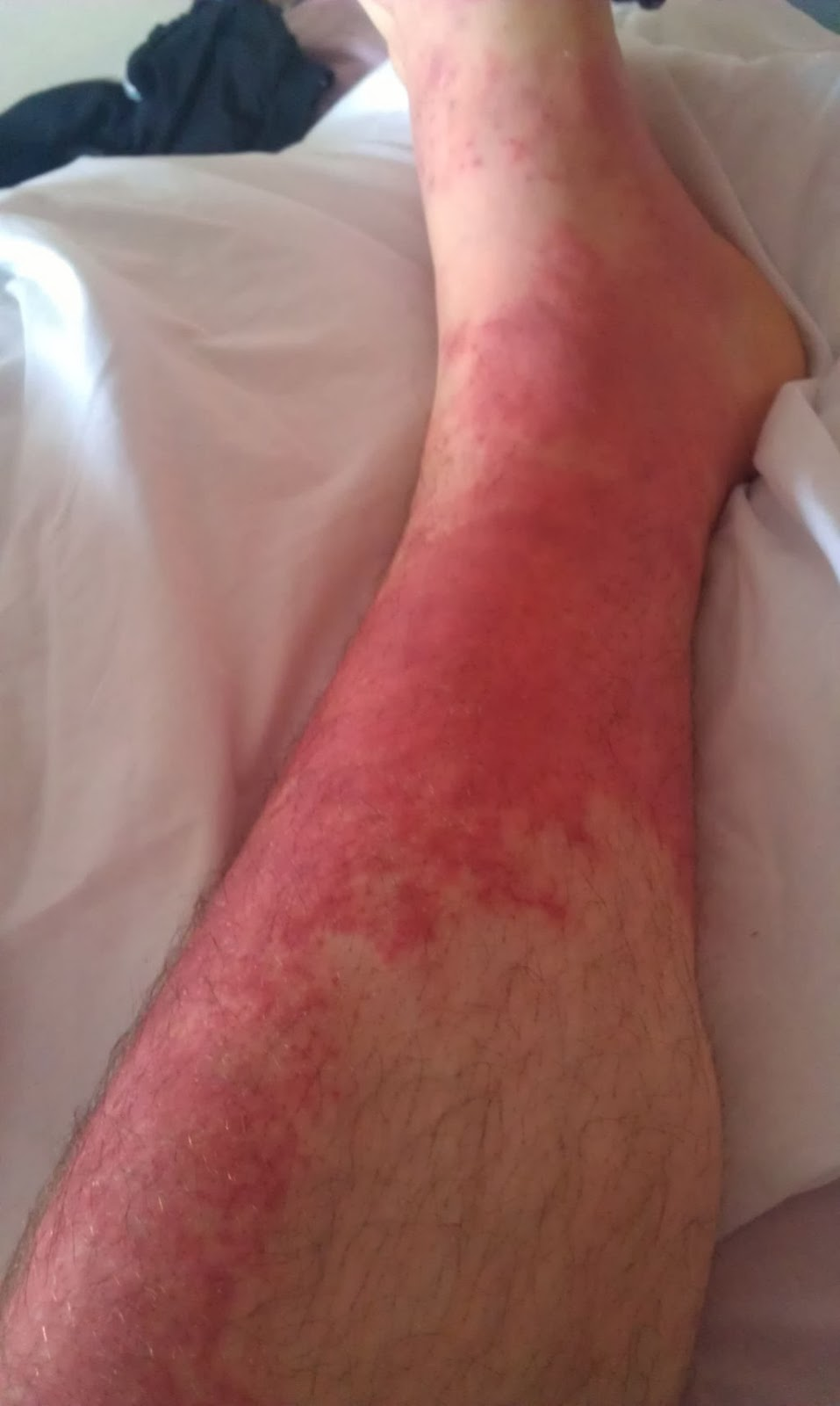 Foot swelling and Redness - Right Diagnosis