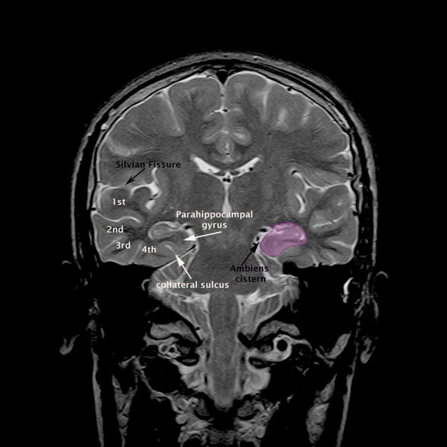 Mri Brain Ambiens Cistern Anatomy Radiology Anatomy Images
