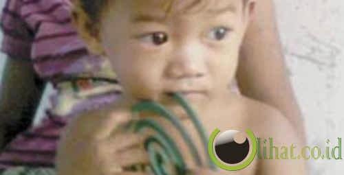 anak kecil doyan obat nyamuk bakar