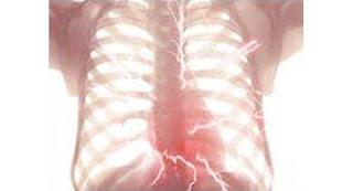 trasplantes pulmonares Sandra Campos