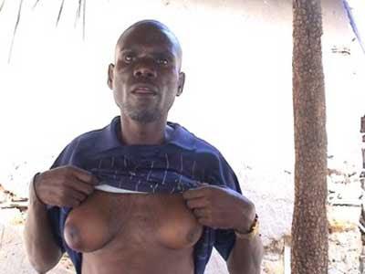 Joseph-Mkanda - Payudara lelaki besar kerana ubat AIDS