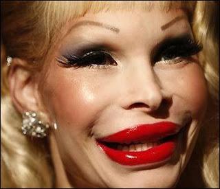 Ofiara botoksu. Botox victim.