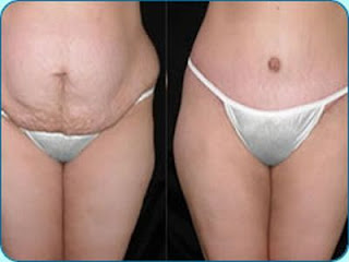 Fotos Cirurgia Abdominoplastia