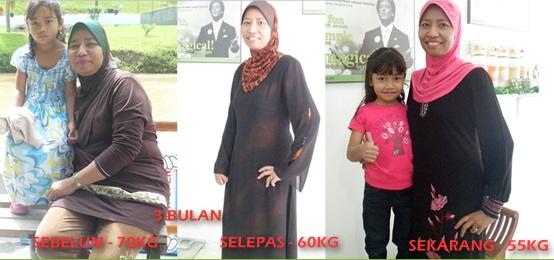 Medical weight loss macon ga