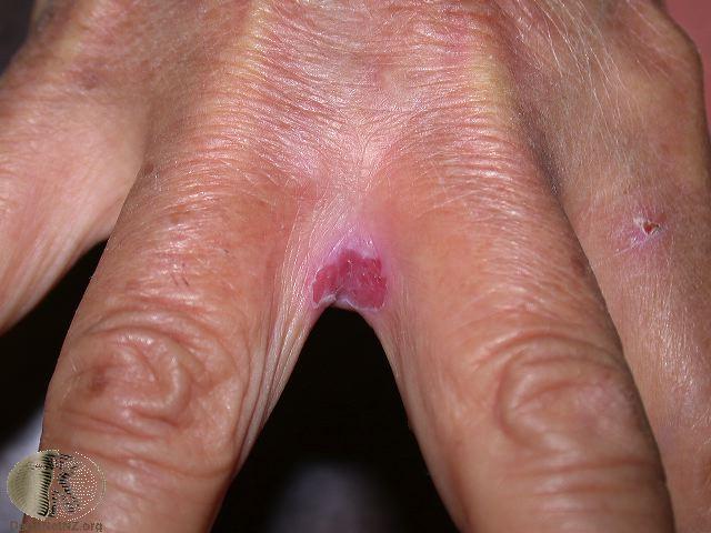 El ungüento ivanova la psoriasis