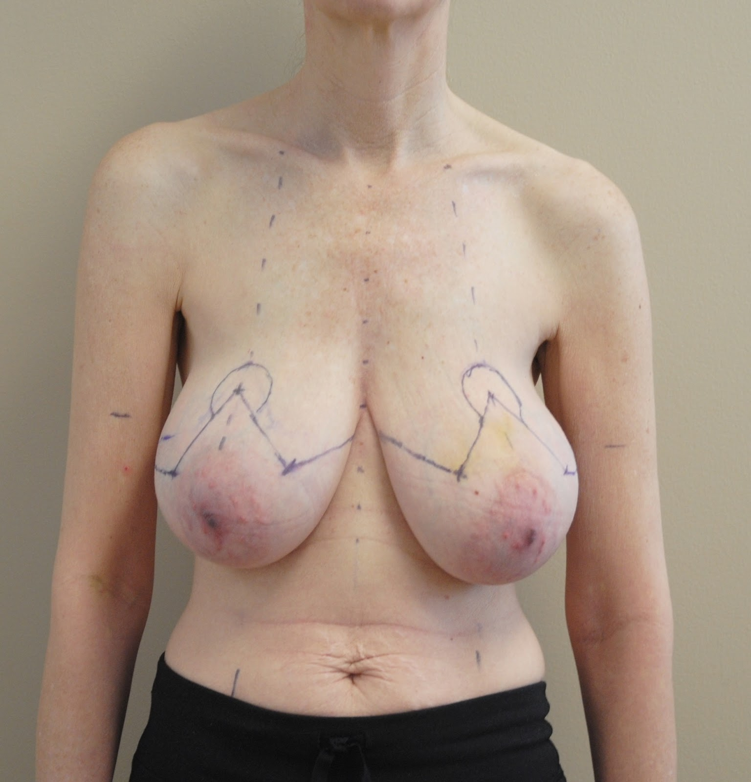 Breast Reconstruction Pictures Before & After Photos