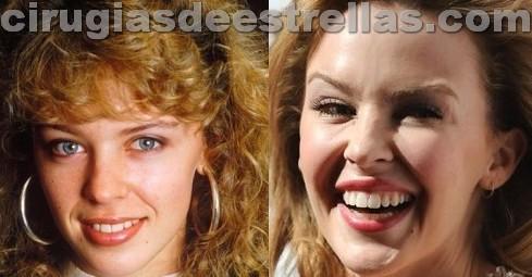 Botox de Kylie Minogue