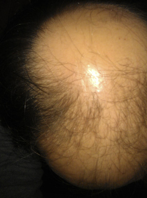 Regaine / Rogaine Foamwith Minoxidil - an attempt to regrow my hair