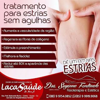 Fisioterapia e Estética - Acaraú
