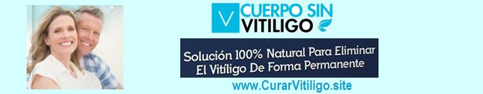 Curar el Vitiligo - Blog de tratamiento natural para quitar manchas del Vitíligo en casa