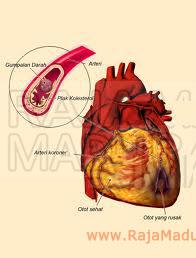 MADU Mengurangi Resiko Penyakit Jantung