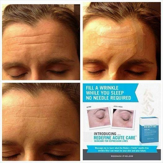 Nellie & Phoeb's: Rodan + Fields Launches Redefine Acute Care