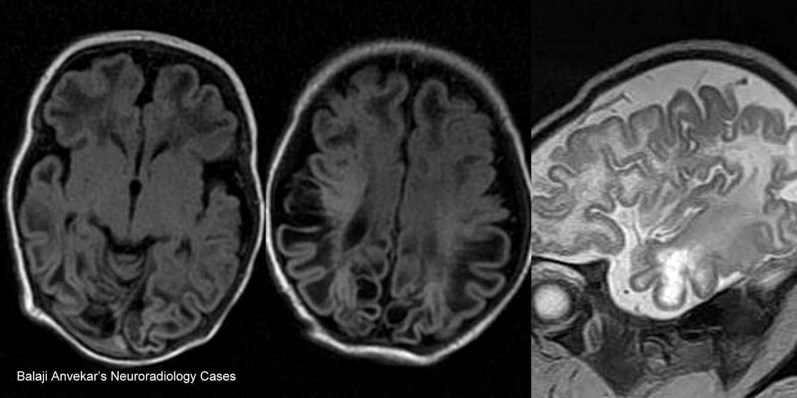 mri hersenen dementie
