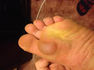 The results of poor form when barefoot running - a massive blister!