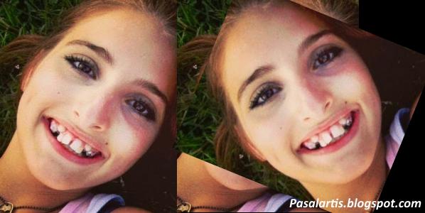 FOTO Perubahan Gadis Ini Selepas 3 Tahun Tanpa Pembedahan Plastik Yang Mengejutkan