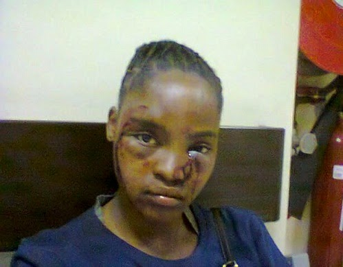lady beaten boyfriend durban