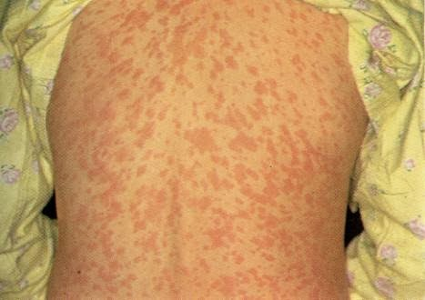 Rash After Antibiotics For Strep Throat - Doctor answers ...