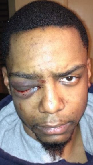 BROOKLYN: Gay-Bashing Victim Sues Ultra-Orthodox Street Patrol Members