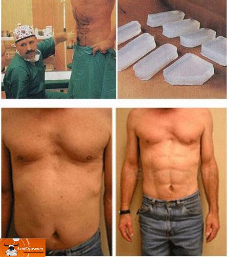 Cirurgias plásticas mal sucedidas