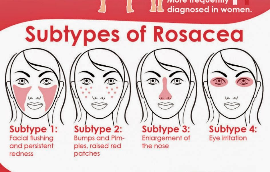 rosacea Acne adult