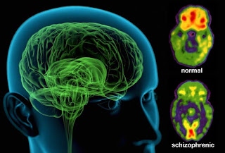 Brain imaging showing the effects of schizophrenia