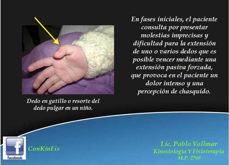 Consultorio Privado de Kinesiología y Fisioterapia: Dedos en Gatillo ...