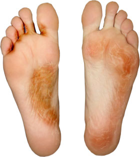 Athlete 39 s foot infections care contagious definition and treatments skin your health for Swimming pool fungus treatment