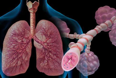 Asthma Rog ke Karan Lakshan