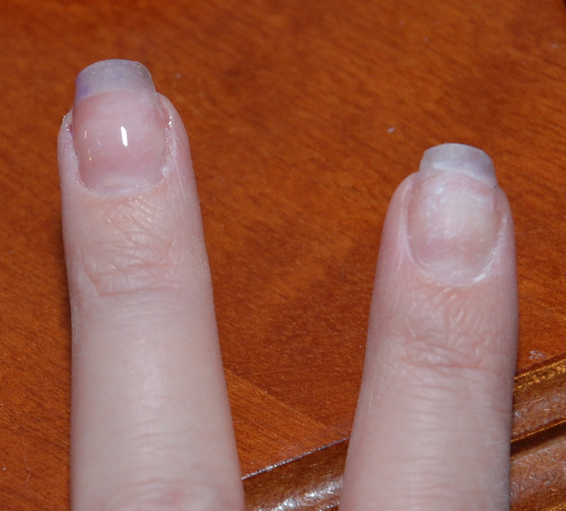 One nail with unhardened gel on, the other is still bare.
