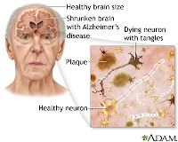 Nursing Care Plan for Alzheimer's Disease