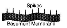 Membranous-Glomerulonephritis