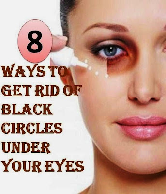 8 Ways To Get Rid of Black Circles Under Your Eyes