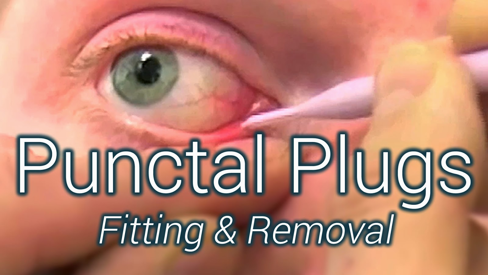 Fitting and removing Punctal Plugs