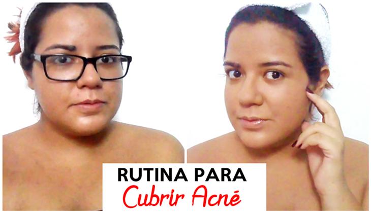 Cubrir el acné con maquillaje